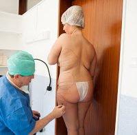 Cirurgia Plástica de Bernardina (Casa dos Segredos)